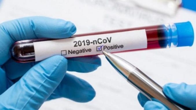 COVID19-positive-test-tube